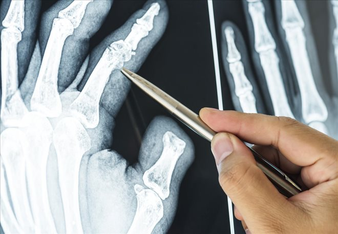 Bone Fractures First Aid for Accident Victims