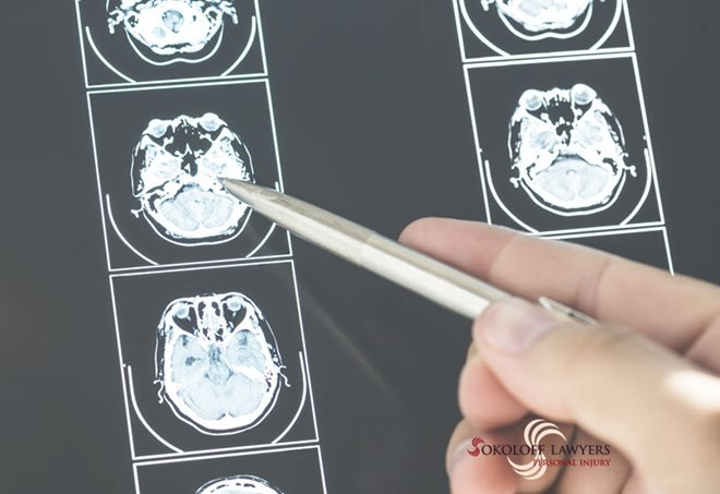 Brain Damaged Injuries Lawyers Can Help You Get Compensation braindamageinjurieslawyer