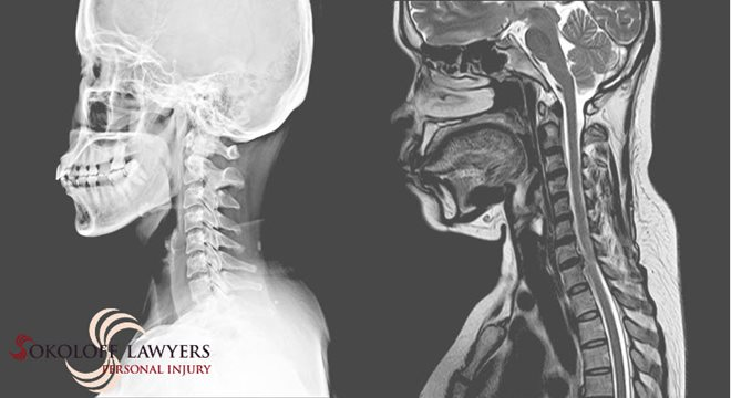 Spinal Cord Injuries Lawyers Help Accident Victims spinalcordinjurieslawyer